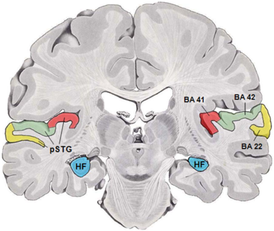 Human temporal lobe areas.png